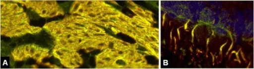 Double labeling of primate bulbus oculi tissue sections with patient serum and a commercial antibody to anti-ITPR1. An overlay of the index patient's IgG and a commercial antibody to ITPR1 was also observed outside the CNS and the intestine, e.g., in the eye bulb (A: ciliary muscle, B: retina with rod and cone processes), confirming the specificity of the patient antibody for ITPR1. Anti-ITPR1 reactivity is depicted in red (Alexa Fluor® 568), the patient antibody in green (Alexa Fluor® 488), and yellow indicates overlay of the two antibodies. Nuclei are shown in blue (DAPI).