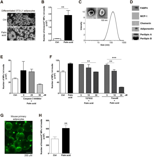 MPs are released by stressed adipocytes in a caspase 3 and Rho-associated kinase dependent manner.(A-D) Characterization of adipocyte-derived MPs. (A) Morphology of the differentiated 3T3-L1 adipocytes treated with control, 0.5 mM palmitic acid. (B) The number of Annexin V positive MPs was quantitated by flow cytometry. (C) Dynamic light scattering analysis and Transmission Electron Microscopy of isolated MPs. Isolated MPs were measured by Zetasizer and analyzed using intensity. (D) Western Blot analysis of MPs released by adipocytes. Isolated MPs were fractionated by SDS-PAGE and probed with FABP4, MCP-1, Chemerin, Adiponectin and Perilipin antibody. (E-F) Differentiated adipocytes were incubated with or without palmitic acid in the absence or presence of a selective caspase-3 inhibitor (E), or a range of doses of two different Rho associated kinase inhibitors (Y27632 and fasudil) (F) for up to 12 hrs. Supernatants were then collected and MPs isolated by ultracentrifugation as detailed in methods section. (G) Morphology of isolated mouse primary adipocytes. (H) Number of annexin V positive mouse primary adipocyte-derived MPs assessed by flow cytometry. Values represent mean ± S.D. * P < 0.5; ** P < 0.01; ***P < 0.001 compared to controls.