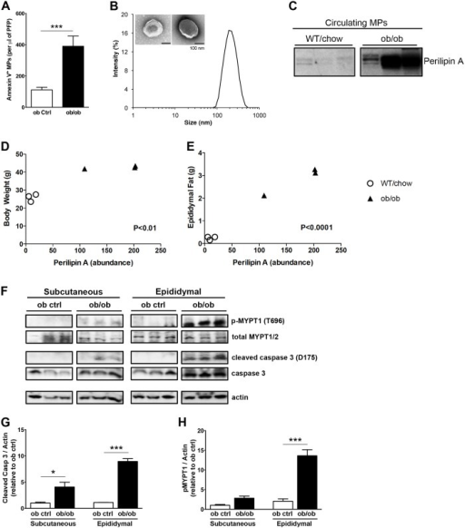 Obesity is associated with increased levels of circulating MPs and increased adipose activity of Rho associated kinase and caspase 3Annexin V positive MPs from (A) ob control or ob/ob mice. Blood was collected by cardiac puncture and PFP was obtained as detailed in methods section. Annexin V positive MPs were analyzed by flow cytometry (n = 5 each group). (B) Dynamic light scattering analysis and Transmission Electron Microscopy of isolated circulating MPs. (C) Western blot analysis of perilipin A levels in MPs isolated from mouse PFP in WT mice on a regular chow diet and ob/ob mice (n = 3 each group). Perilipin A abundance in MPs isolated from mouse PFP correlated to: (D) total mouse body weights and (E) weight of extracted mouse epididymal fat pads. (F) Western blots of p-MYPT1, total MYPT1/2, cleaved (active) caspase 3, total caspase 3, and actin levels in subcutaneous and epididymal adipose tissue lysates from ob control or ob/ob mice. Quantification of Western blots of (G) cleaved caspase 3 and (H) p-MYPT in ob control and ob/ob mice adipose tissues normalized to actin levels. Values represent mean ± S.E.M. *P < 0.05; ***P < 0.001 compared to respective controls.