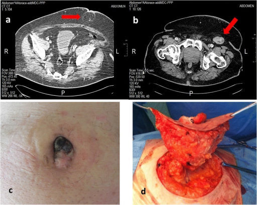 Case 3. (a) Computed tomography image showing nodular swelling in the umbilical region (b) Computed tomography image of left groin lymphadenopathy of 54 x 28 mm (c) pre-operative view (d) wide excision comprising the underlying peritoneum.