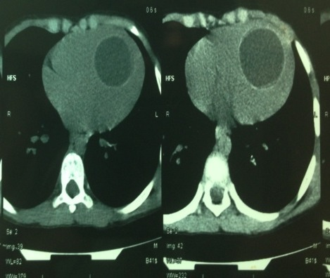 CT Scan: a hypodense round liquid formation in the left ventricle