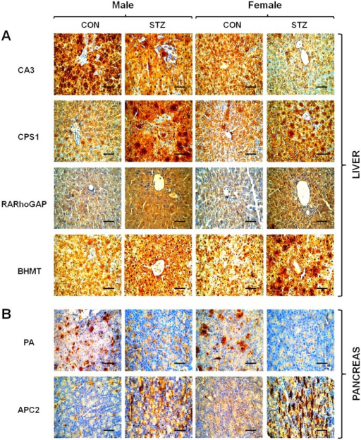 Immunohistochemistry of SPARC-interacting partner proteins (CA3, CPS1, RARhoGAP, and BHMT) in liver (A) as well as PA and APC2 in pancreatic tissue (B) from control and diabetic rats.Representative photomicrographs are shown from sections counter-stained with haematoxylin (magnification X400 and scale bar represents 50 μm).