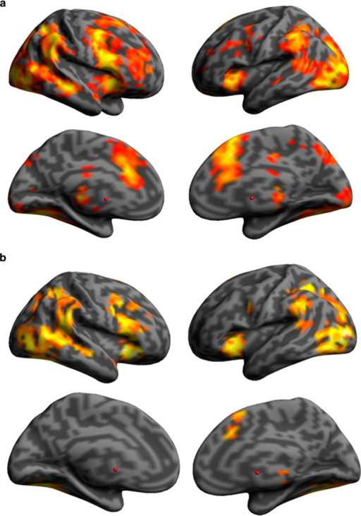Significant brain activation maps associated with stopping in each group separately. (a) Denotes lateral and medial views of recreational cocaine users. (b) Denotes lateral and medial views of healthy volunteers. P<0.001 uncorrected, for illustration purposes only.