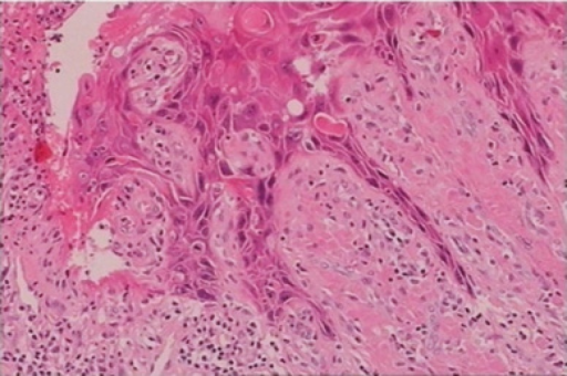 Histology of the giant condyloma