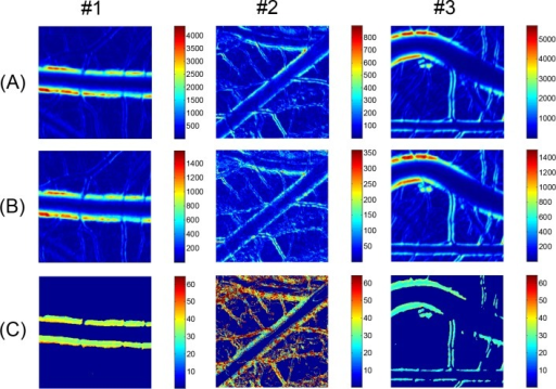 Harmonic amplitude maps of arterial wall motion.Local variations of magnitude of (A) fundamental and (B) second harmonic components corresponding to artery images in Fig 3 are presented in false color maps. (C) Maps for fundamental to second harmonic magnitude ratio obtained from (A) and (B). Color bars in (C) indicate percentage of ratio.