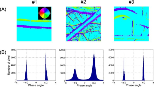 Phase angle maps of arterial wall motion.Local variations in phase angle of fundamental component corresponding to Fig 5A are displayed in (A) continuous phase maps and (B) histograms.