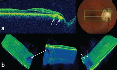 a) B-scan optical coherence tomography images taken 6 months after treatment showing marked regression of intraretinal fluid, and peripapillary fibrosis and cicatrization (white arrows); b) three-dimensional spectral-domain optical coherence tomography images showing incomplete closure of a large laminar defect (white arrow) and complete closure of small prelaminar defects (white arrows)