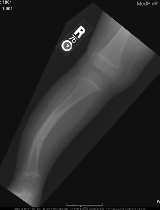 Markedly bowed right tibia, convex anterolateral, greatest in mid diaphysis with endosteal reaction and cortical thickening, medial greater than lateral in the shaft of the right tibia.  There is an oblique lucency through the area of greatest bowing consistent with a closed fracture.  The distal fragment is slightly displaced anteriorly.  The fracture line is subacute as there is sclerosis at the ends of both fragments.  Findings are consistent with pseudoarthrosis.