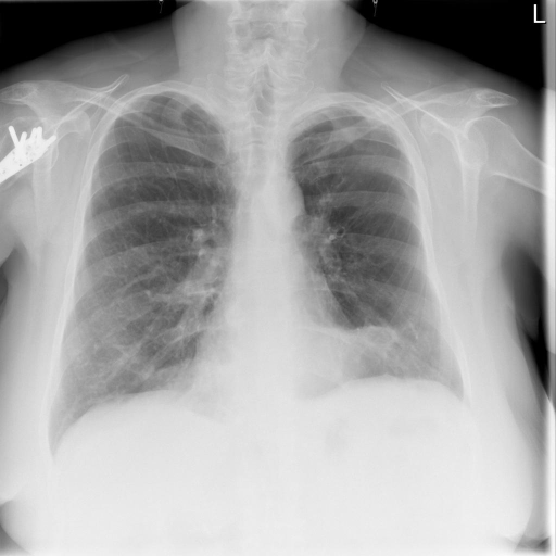 PA and Lateral Chest X-XXXX dated XXXX.