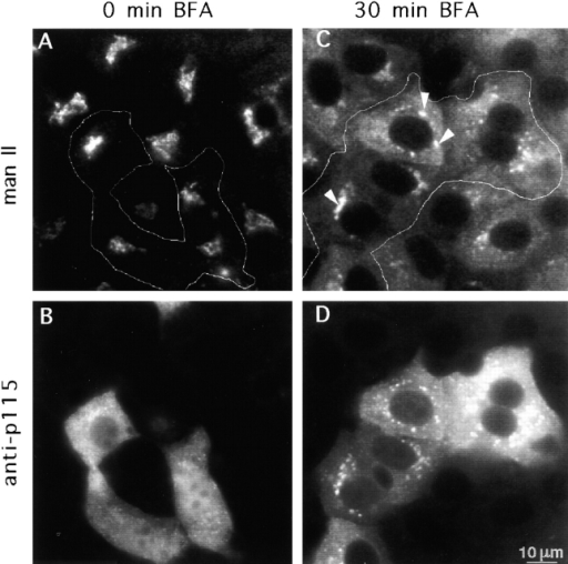 Antibodies against p115 do not block BFA-induced retrograde Golgi to ER traffic. Mouse mAbs against p115 were microinjected into the cytoplasm of WIF-B cells. Cells were fixed immediately after injection (A and B) or after a 30-min BFA treatment (C and D). Cell were processed for double label immunofluorescence using antibodies against Mann II (A and C) or against mouse IgG (B and D). Relocation of Mann II from the Golgi to the ER appears indistinguishable in injected and uninjected cells. Golgi remnants were detected in some cells after the 30-min BFA treatment (C, arrowheads).