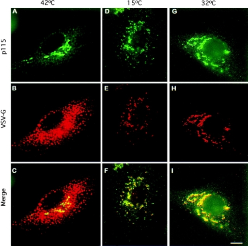 p115 is associated with VTCs moving cargo VSV-G protein from the ER to the Golgi. NRK cells were infected with VSVtsO45 at 42°C for 3 h. The cells were either fixed (A–C) or incubated at 15°C for 3 h (D–F) or at 32°C for 1 h (G–I) before fixation. Cell were processed for double label immunofluorescence using antibodies against p115 (A, D, and G) and antibodies against VSV-G protein (B, E, and H). At 42°C, VSV-G protein is present in the ER (B), whereas p115 is predominantly localized to the Golgi (A). p115 and VSV-G protein colocalize in peripheral VTCs after 15°C incubation (D–F), and in the Golgi after 32°C incubation (G–I). Bar 10 μm.