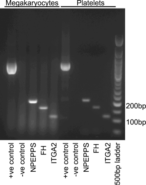 Agarose gel electrophoresis of PCR products.Lanes 1–5 show products amplified from megakaryocyte cDNA; samples in lanes 6–10 contained template from platelets. Molecular size markers are in lane 11.
