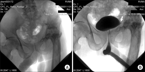Panoram X-Ray of pelvis (A) and miction cystourethrography (B). Arrow points to extravasation of the contrast medium.