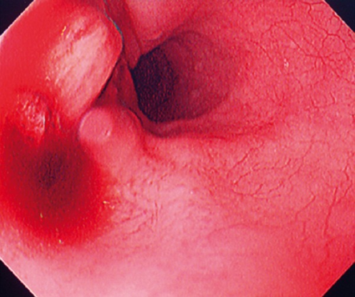 Esophagogastroduodenoscopy demonstrated esophageal ulcer with evidence of slight ongoing bleeding at 20 cm beyond the dental arch.