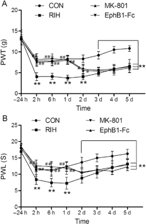 The effects of EphB1-Fc and MK-801 on mechanical allodynia (A) and thermal hyperalgesia (B) induced by remifentanil in rats. Data were shown as the mean ± standard deviation. **p < 0.01, compared with group CON; #p < 0.05, ##p < 0.01, compared with group remifentanil-induced hyperalgesia (RIH); n = 6 rats in each group. PWL, paw withdrawal latency; PWT, paw withdrawal threshold.
