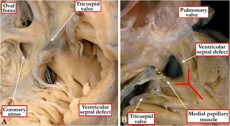 The view of the opened right atrioventricular junction (A) shows a muscular ventricular septal defect opening to the inlet of the right ventricle beneath the septal leaflet of the tricuspid valve. In the specimen shown in Figure 4B, the free wall of the right ventricle has been lifted away to show a muscular ventricular septal defect opening into the outlet portion of the right ventricle. The ventricular septal defect lies within the arms of the septal band (red Y), with the caudal arm fusing with the inner heart curvature to produce a muscular bar (yellow dots) that interposes between the leaflets of the atrioventricular and arterial valves.