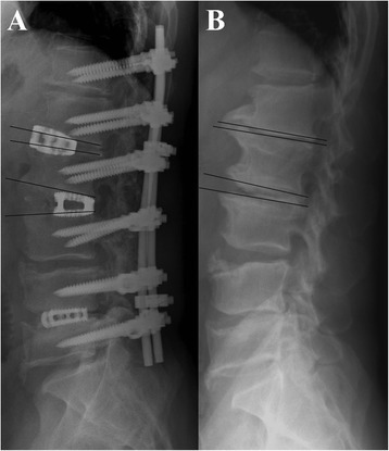 Radiographs of postoperative lateral view (A) and preoperative lateral view (B) showing a posteriorly placed L2-3 cage provided more sagittal plane correction (2° pre-op to 19° post-op, correction 17°) than a more anterior L1-2 cage (−2° pre-op to 4° post-op, correction 6°).