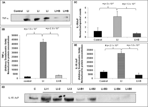 Baclofen inhibits release of pro-inflammatory mediators in BAL supernatants of lung injured rats.(A) Bronchoalveolar lavage fluid (BALF) was centrifuged to separate BAL cells from BAL supernatant. BAL supernatant was collected from three animal groups: control (lane 1), lung injury (LI) (lane 2, 3, 4), or LI followed by baclofen administration (LI+B) (lanes 5 and 6), and the proteins were separated by SDS-PAGE followed by immunoblot analysis for TNF-α. (B) TNF-α Immunoblots were scanned and band densities were quantified using ImageJ software. Arbitrary densitometric values obtained were normalized to protein concentration for each sample. Data is expressed as mean ± SEM (n = 5 animals per group). (C) BAL supernatants from three animal groups: control, lung injury (LI), LI followed by baclofen administration (LI+B) were subjected to proteomic analysis to identify and quantitate a BALF protein that was present in lung injured animals and was regulated by baclofen treatment. Interleukin-1 receptor accessory protein beta (IL-R AcP) was identified in all three animal groups tested. Spectral counts for IL-1R AcP were plotted against control, LI, LI+B groups. Data is expressed as mean ± SEM (n = 3 per group). (D) Mass spectrometry data was validated by immunoblotting BAL supernatants from three animal groups: control, lung injury (LI), or LI followed by baclofen administration (LI+B) with anti-IL-1R AcP antibody. (E) IL-1R AcP immunoblots were scanned and band densities were quantified using ImageJ software. Arbitrary densitometric values obtained were normalized to protein concentration for each sample. Data is expressed as mean ± SEM (n = 5 animals per group).