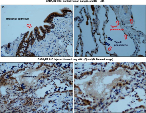 GABABR2 expression is regulated in type II pneumocytes of lung tissue sections of lung injured patients compared to the controls.This is a representative image (40X) of anti-GABABR2 immunohistochemistry that was performed on lung tissue sections from control and lung injured patient (lung injured patients n = 4). (A) Anti-GABABR2 was detected in the bronchial epithelium of the control lungs and (B) in the type I and type II pneumocytes of control lung. (C) Increased type II pneumocytes were detected in the lungs of the lung injured patients. Moreover, GABABR2 expression was mainly detected in the type II pneumocytes in these patients suggesting a physiological role for GABABR2 in the repair to lung damage. (D) zoomed image of 6C.