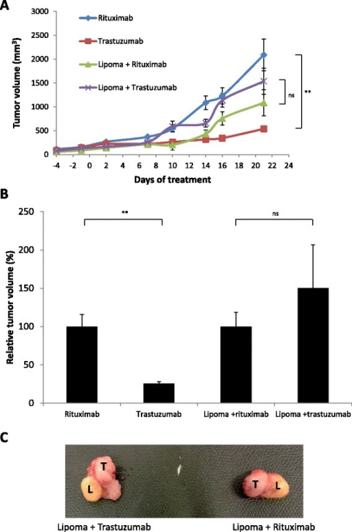 Abdominal adipose tissue inhibits antitumor effect of trastuzumab in vivo. (A) Tumor growth in BT-474 xenograft mice treated with trastuzumab or rituximab in the presence or absence of lipoma. Median ± standard error of the mean data are shown. (B) Normalization of the tumor volumes shown in (A) with the tumor volumes of mice treated with rituximab. (C) Photos of the tumors in contact with the lipomas taken from mice treated with either trastuzumab (left) or rituximab (right). L, Lipoma; ns, Not significant; T, Tumor. **P < 0.01.