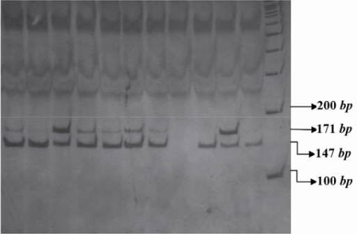 PCR- RFLP profile of IL16 rs11556218 T/G polymorphism digested with NdeI restriction enzyme.