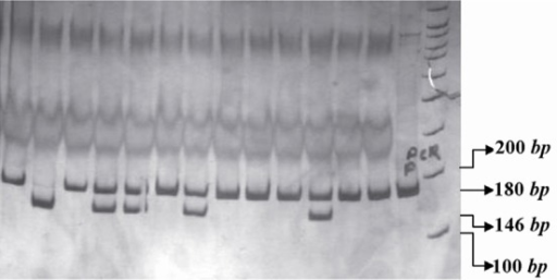 PCR- RFLP profile of IL16 rs4778889 T/C polymorphism digested with AhdI restriction enzyme.