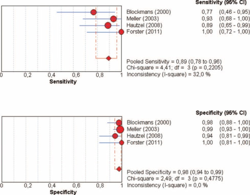 Diagnosis of LVV in patients with GCA by using FDG-PET: forest plots of eligible studies show individual and pooled sensitivities and specificities of the studies included in the meta-analysis and the related inconsistency index. FDG-PET = 18F-fluorodeoxyglucose positron emission tomography, GCA = giant cell arteritis, LVV = large-vessel vasculitis.
