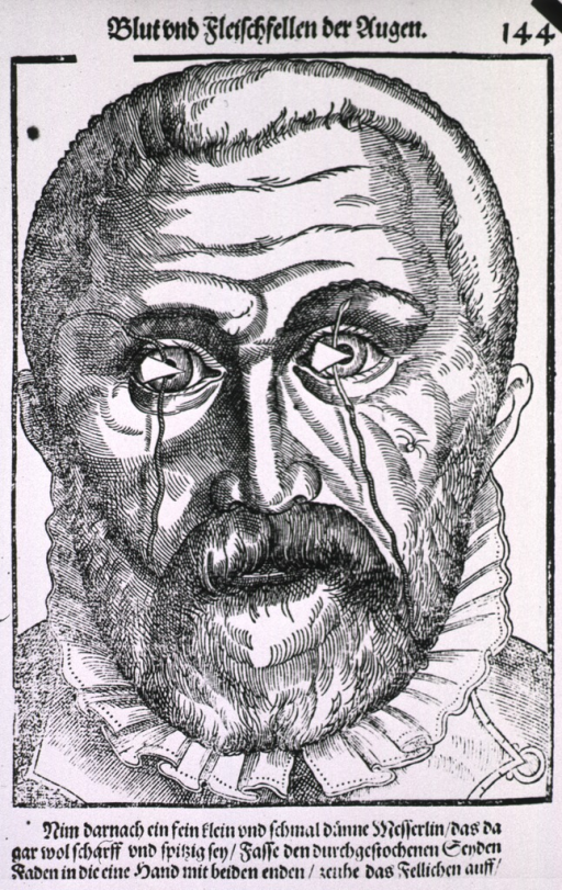 <p>Close-up of the head of a man showing needles with string passing through the structure of the pterygium.</p>