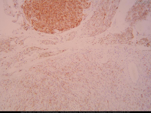 Histology of a patient with Nevus Ota and Melanoma.