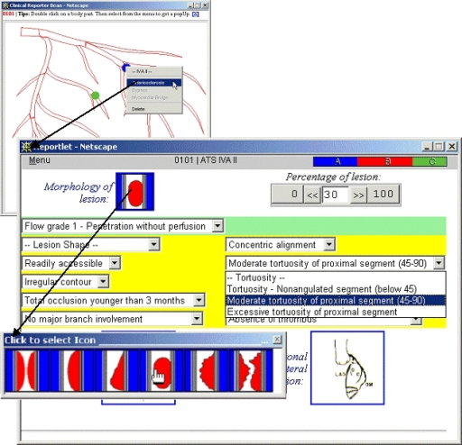 The Reporter Bean (top-left) is launched from the EPR Browser. Each report is configured to the particular exam in question, here the left coronary artery. The user clicks on the resultant image map (SVG encoded) to initiate a reportlet page from a menu of context-sensitive reportlets. Here, the user chose to report on Arteriosclerosis for the vessel labeled IVA II. A reportlet (bottom) for Arteriosclerosis then appears and allows the medics to graphically specify the clinical signs appropriate for their patient. As is shown, the interface is constructed from sliders, pull-down text menus and pop-up image menus; there is no way to hand type information. The colored part of the menu-bar is a decision support aid that dynamically indicates the type of lesion, based on the evidence accumulated in the report. In this case the simple voting heuristic implemented indicates that a type B lesion is the most likely interpretation. The next figure illustrates the mechanism underlying each reportlet