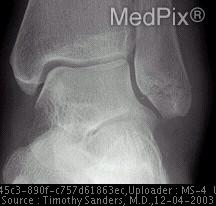 Weber Type A fractures (see image A) include transverse fibular fractures at or below the level of the tibial plafond.  Associated vertical fractures of the medial malleolus may be present.
