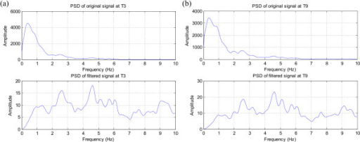 The effect of the filter on the spectrum of the signals recorded around the seizure focus. (a) T3 signal spectrum, (b) T9 signal spectrum; Note the removal of the 1/f trend and the clear peak around 4.5 Hz indicating the rhythmic seizure activity.