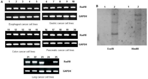 The expression of Rad18 in human cancer cell lines. A: RT-PCR analysis of Rad18 in human cancer cell lines. A part of cell lines examined are present. The expression of Rad18 mRNA is observed in all cancer cell lines but PC3 (lane 24). Lane 1: KYSE30, 2: KYSE140, 3: TE1, 4: TE9, 5: TE10, 6: AGS, 7: MKN1, 8: MKN28, 9: NUGC3, 10: NUGC4, 11: Caco2, 12: Colo201, 13: Colo205, 14: DLD-1, 15: HCT116, 16: AsPC-1, 17: Capan1, 18: Capan2, 19: Panc1, 20: SUIT-2, 21: A549, 22: EBC1, 23: LU99, 24: PC3, 25: LCOK. B: Fragment Southern of PC3 (lane 1) and MCF7 (lane 2). Rad18 is homozygously deleted in lung cancer cell line PC3.