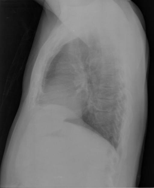 PA and lateral chest x-XXXX dated XXXX, XXXX at XXXX a.m.