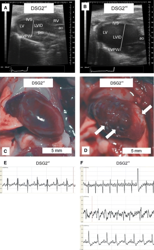 Homozygous DSG2-mutant mice (DSG2mt) present ventricular dilation and signs of compromised cardiac function. a, b Representative echocardiography (pictures taken in B-mode) at the end of diastole in wild-type (DSG2wt) male mice compared to age-matched male DSG2mt mice. RV right ventricle, LV left ventricle, IVS interventricular septum, LVPW left ventricular posterior wall, LVID left ventricular inner diameter, ao aorta, pm papillary muscle. c, d Comparison of the morphology of a wild-type (c) and a DSG2-mutant heart (d), which presents an enlarged right ventricle and extensive fibrotic lesions (arrows). e, f Representative ECGs from wild-type (e) and mutant mice (f). Note the abnormalities in the ECGs of the mutant mice presenting extrasystole, arrthythmia and conduction abnormalities (f, from top to bottom)