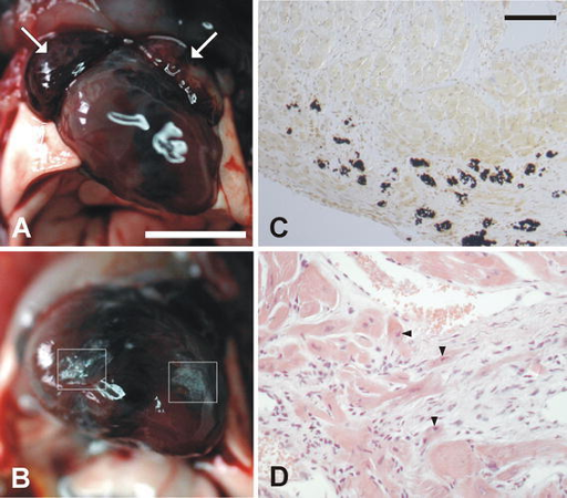 Cardiac morphology and histology of 13-week-old male DSG2mt/mt mice. Note the pronounced dilation of the heart chambers in (a, b) and the dilated atria (arrows in a). c Representative Kossa stain of an area in the ventricular wall marked by rectangles in b. The black silver deposits within such a fibrotic lesion indicate the presence of calcified, necrotic cardiomyocytes. d Representative hematoxylin/eosin stain of an area with cardiomyocytes surrounded by fibrous tissue. Note the dysmorphic nuclei of cardiomyocytes (arrowheads) adjacent to fibrocytes. Scale bars: 5 mm in a, same magnification in b; 200 μm in c, same magnification in d