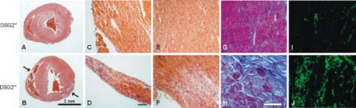DSG2 mutation induces fibrosis in both ventricles. Hearts were dissected from wild-type and mutant mice carrying two DSG2mt alleles. Histological sections were either stained with hematoxylin/eosin (a–f) and azan (g, h) or were incubated with antibodies directed against the connective tissue marker vimentin and processed for indirect immunofluorescence microscopy (i, j). Note the increased presence of connective tissue in DSG2mt/mt mice. In addition to diffuse fibrosis, large fibrotic scars are visible in the ventricular walls (arrows in b). The magnification is the same in a and b, c–f (scale bar in d, 100 μm) and g–j (scale bar in h, 100 μm)