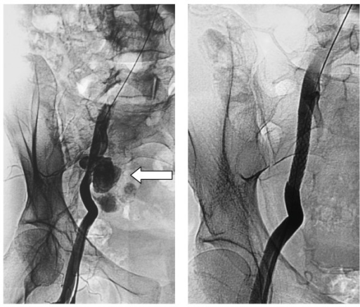 Mycotic pseudoaneurysm's (arrow left) exclusion with covered stent (right).