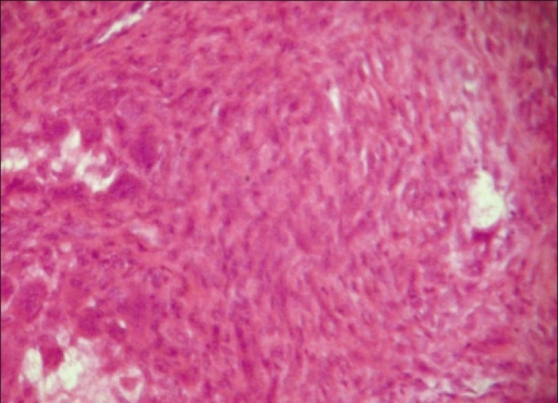 Histopathology showing fibrocellular connective tissue stroma with fibroblasts, giant cells, osteoblasts and blood vessels