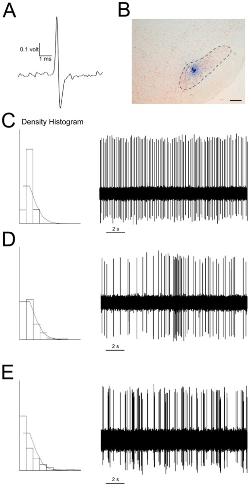 Electrophysiological characterization of neurons in the subthalamic nucleus.(A) A single spike from an STN neuron recorded in vivo. (B) Histological verification of the recording site in the STN, counterstained with neutral red. Scale bar: 200 µm. Examples of action potential traces, showing the three characteristic firing patterns of STN neurons. (C) Tonic firing pattern, in which the density histogram follows a Gaussian distribution. (D) Random firing pattern, in which the density histogram represents a Poisson distribution. (E) Bursting firing pattern, in which the density histogram represents a distribution significantly different from a Poisson distribution, with a significantly positive skewness of the density discharge distribution histogram.