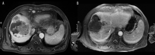 (A) Contrast-enhanced MR image before DEB TACE with viable enhancing neoplastic tissue. (B) Contrast-enhanced MR image after two DEB-TACE procedures showing a partial response (PR).