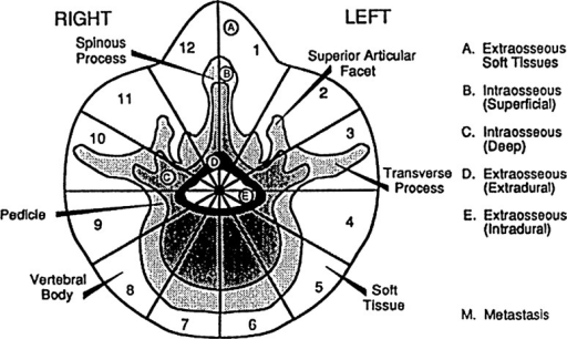 WBB (Weinstein, Boriani, Biagnini) Surgical Staging System. The transverse extension of the vertebral tumor is described with reference to 12 radiating zones (numbered 1–12 in a clockwise order) and to five concentric layers (A–E, from the paravertebral extraosseous compartments to the dural involvement). The longitudinal extent of the tumor is recorded according to the levels involved. From Boriani [9]