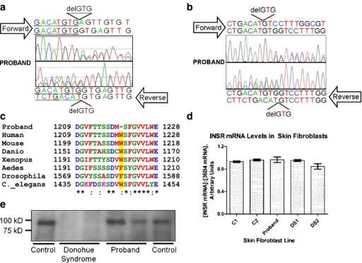 The Proband has a heterozygous GTG deletion at the end of exon 20 of the INSR gene in genomic DNA (a), which is seen also in INSR cDNA (b). The nucleotide deletion causes deletion of Trp1220 (Trp1193 in the mature receptor), a strongly conserved residue (c) located in an alpha helix within the tyrosine kinase damin of the receptor. There was no detectable change in expression of the INSR in dermal fibroblasts from the proband as assessed by quantitative real time PCR (d) and immunoprecipitation/immunoblotting (e) for the insulin receptor beta subunit