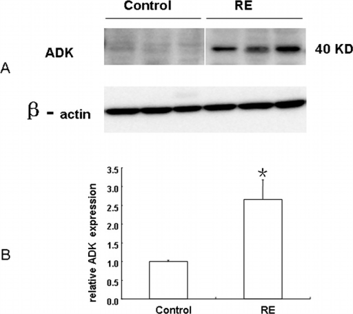 Western blot analysis of adenosine kinase (ADK) in RE and control specimens. (A) Representative immunoblots of ADK (∼40 kDa) in total homogenates of RE and control specimens. Beta-actin immunoreactivity was used to normalize for equal protein loading. (B) Quantitative analysis of ADK expression levels. Data are mean ± SEM (n = 3 per group). * p < 0.05 vs control.