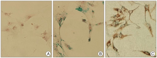 In vitro cell staining. A : Non-labeled human mesenchymal stem cell, Prussian blue staining, original magnification ×400. B : Labeled hMSC, Prussian blue staining, original magnification ×400. C : Combined staining with antimitochondrial antibody-Prussian, original magnification ×400.
