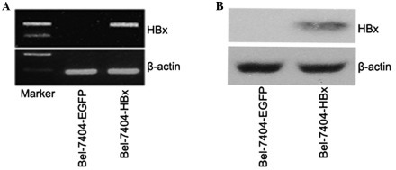 Identification of stable HBx transfection in Bel-7404 cells. (A) Integration of the HBx gene into the engineered cells was identified by reverse-transcription polymerase chain reaction using genomic DNA as a template; β-actin served as a loading control. (B) Western blot analysis reveals the expression of HBx in Bel-7404 cells. HBx, hepatitis B virus X protein.