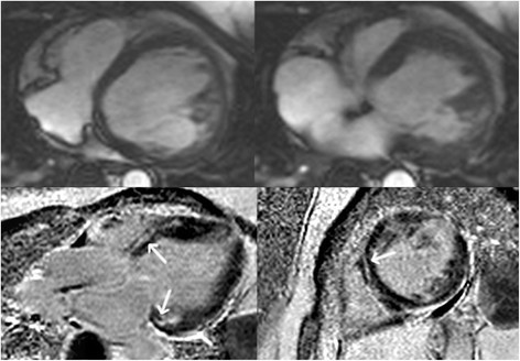 Horizontal long-axis (top panels) bright blood and late gadolinium enhancement images (bottom panels) in an ARVC subject with predominant left ventricular abnormalities. Note a dilated left ventricle in the bright blood images. Late enhancement is observed in a mid-myocardial pattern in the basal septum and basal lateral wall (arrows, bottom panels).