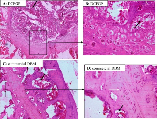 Histology of 6-week samples of fusion by DCFGP (A and B) and commercial DBM (C and D). Immature and woven bone in DCFGP (A, 10X H & E Staining). Trabecular bone (white arrow) and marrow formation (black arrow) are seen in the fusion area of the same figure in a high magnification view (B, 40X H&E Staining). More mature bone (black right angle) with osteocyte cells are seen in the lesion of the commercial DBM group (C, 10X H & E Staining). Higher power view of the same picture shows bony tissue (white arrow) and marrow formation (black arrow) (D, 40X H&E Staining)