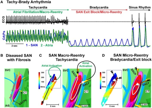 (A) Example of Tachy-Brady arrhythmia often observed in structurally remodeled hearts with upregulated intranodal fibrosis. Atrial Fibrillation or Tachycardia leads to Bradycardia (long pauses) due to SAN exit block, followed by recovery of sinus rhythm or new Tachycardia event. ECG (black) and Optical Action Potentials (green and blue). Modified from Lou et al. (2013) with permission. (B) Enlarged epicardial view of 3D canine SAN model based on structural and functional data from optical mapping experiments. The SAN is demarcated from the atrium (green) by 3 bifurcating coronary arteries (light blue) and connective tissue (light purple). The yellow bundles show SACPs that electrically connect the SAN to the atrium. (C) Macro-reentry between the SAN and atria that occurred in the structurally remodeled canine heart after cessation of atrial tachypacing. Path of macro-reentry correlated with fibrotic strands within SAN. (D) SAN micro-reentry transformed from the previous macro-reentry is shown. Fibrosis strands were the structural substrates anchoring micro-reentry to this area. (B–D) modified from Glukhov et al. (2013) with permission. Abbreviations as seen in Figure 1.
