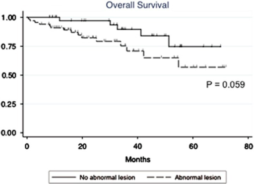 Overall survival of symptomatic MM patients with or without abnormal medullary lesions.